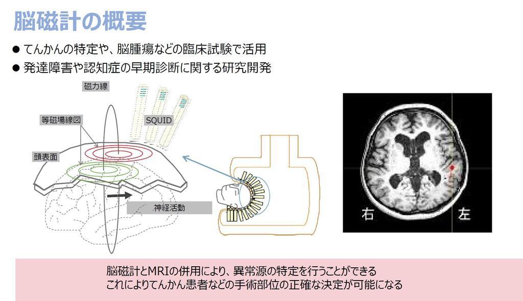 脳磁計の概要