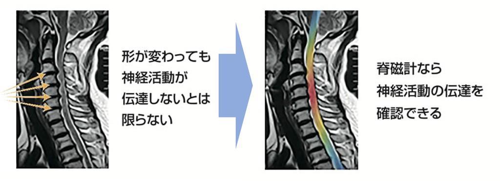 脊磁計を使うことで神経活動を形状ではなく機能で評価することが可能